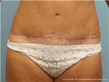 Tummy Tuck After Photo by Evan Sorokin, MD; Cherry Hill, NJ - Case 36361