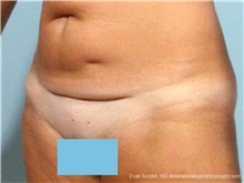 Tummy Tuck Before Photo by Evan Sorokin, MD; Cherry Hill, NJ - Case 36361
