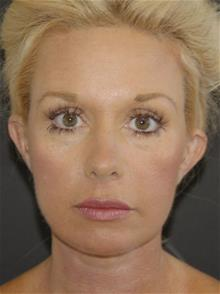 Facelift After Photo by John Anastasatos, MD; Beverly Hills, CA - Case 29302