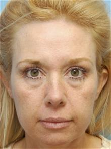 Facelift Before Photo by John Anastasatos, MD; Beverly Hills, CA - Case 29302