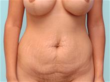Tummy Tuck Before Photo by John Anastasatos, MD; Beverly Hills, CA - Case 29303