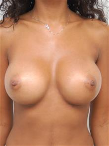 Breast Augmentation After Photo by John Anastasatos, MD; Beverly Hills, CA - Case 29304