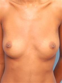 Breast Augmentation Before Photo by John Anastasatos, MD; Beverly Hills, CA - Case 29304