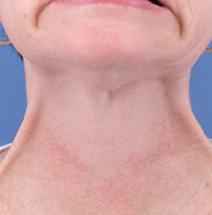 Botulinum Toxin After Photo by Rod Rohrich, MD, FACS; Dallas, TX - Case 3893
