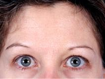 Botulinum Toxin After Photo by Rod Rohrich, MD, FACS; Dallas, TX - Case 3914