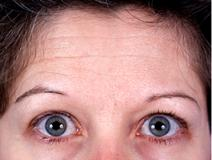 Botulinum Toxin Before Photo by Rod Rohrich, MD, FACS; Dallas, TX - Case 3914