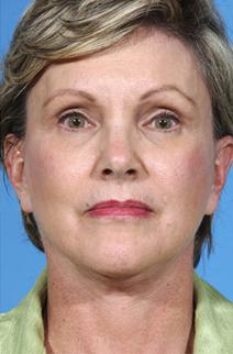 Facelift After Photo by Rod Rohrich, MD, FACS; Dallas, TX - Case 3933