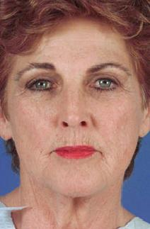 Facelift Before Photo by Rod Rohrich, MD, FACS; Dallas, TX - Case 4015