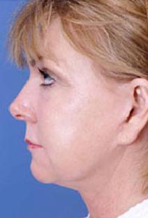 Facelift After Photo by Rod Rohrich, MD, FACS; Dallas, TX - Case 4028