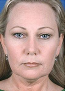 Facelift Before Photo by Rod Rohrich, MD, FACS; Dallas, TX - Case 4039