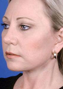 Facelift After Photo by Rod Rohrich, MD, FACS; Dallas, TX - Case 4039