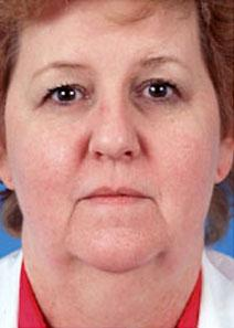 Facelift Before Photo by Rod Rohrich, MD, FACS; Dallas, TX - Case 4051