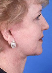 Facelift After Photo by Rod Rohrich, MD, FACS; Dallas, TX - Case 4051