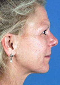 Facelift Before Photo by Rod Rohrich, MD, FACS; Dallas, TX - Case 4064