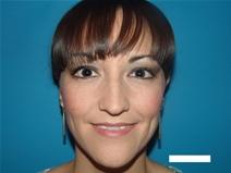 Ear Surgery After Photo by Moneer Jaibaji, MD; Coronado, CA - Case 20291