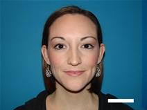 Ear Surgery Before Photo by Moneer Jaibaji, MD; Coronado, CA - Case 20291