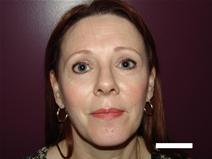 Eyelid Surgery After Photo by Moneer Jaibaji, MD; Coronado, CA - Case 20292