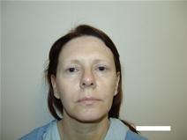 Eyelid Surgery Before Photo by Moneer Jaibaji, MD; Coronado, CA - Case 20292