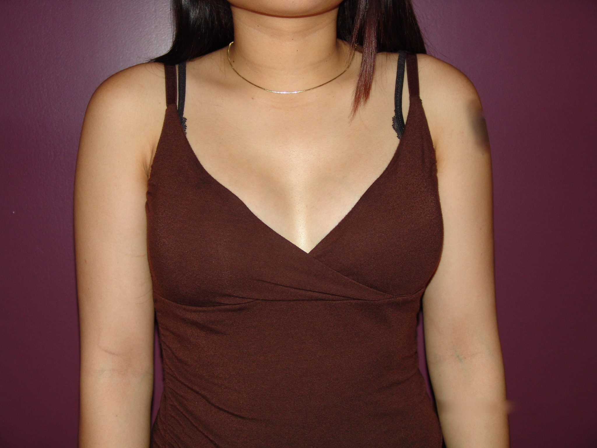Breast implant illness: Is it real?