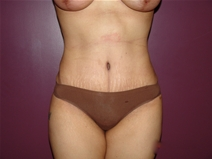Tummy Tuck After Photo by Moneer Jaibaji, MD; Coronado, CA - Case 22780
