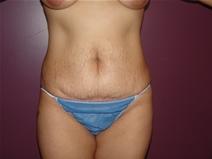 Tummy Tuck Before Photo by Moneer Jaibaji, MD; Coronado, CA - Case 22780