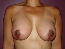 Breast Lift After Photo by Moneer Jaibaji, MD; Coronado, CA - Case 22782