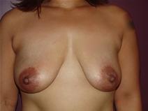 Breast Lift Before Photo by Moneer Jaibaji, MD; Coronado, CA - Case 22782