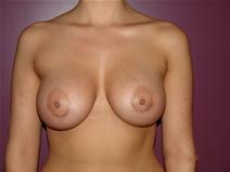 Breast Augmentation After Photo by Moneer Jaibaji, MD; Coronado, CA - Case 23191