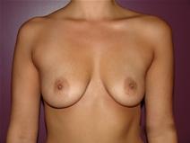 Breast Augmentation Before Photo by Moneer Jaibaji, MD; Coronado, CA - Case 23191