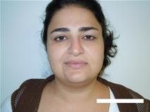 Liposuction Before Photo by Moneer Jaibaji, MD; Coronado, CA - Case 23399