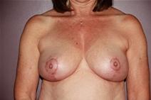 Breast Reduction After Photo by Moneer Jaibaji, MD; Coronado, CA - Case 23400