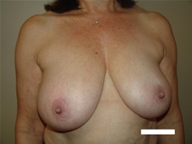 Breast Reduction Before Photo by Moneer Jaibaji, MD; Coronado, CA - Case 23400