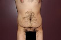 Body Contouring Before Photo by Moneer Jaibaji, MD; Coronado, CA - Case 23401