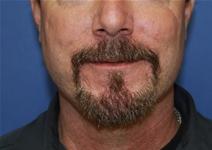 Facelift After Photo by Moneer Jaibaji, MD; Coronado, CA - Case 23437