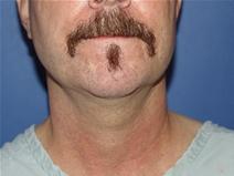 Facelift Before Photo by Moneer Jaibaji, MD; Coronado, CA - Case 23437