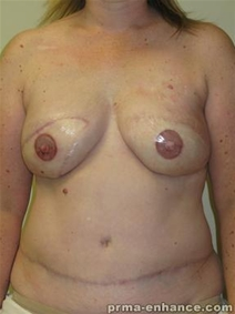 Breast Reconstruction After Photo by Minas Chrysopoulo, MD; San Antonio, TX - Case 23308