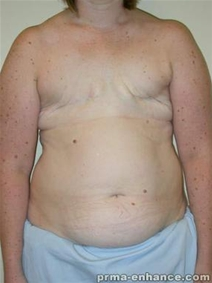 Breast Reconstruction Before Photo by Minas Chrysopoulo, MD, FACS; San Antonio, TX - Case 23308