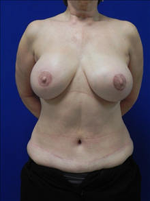 Breast Reconstruction After Photo by Minas Chrysopoulo, MD; San Antonio, TX - Case 24084