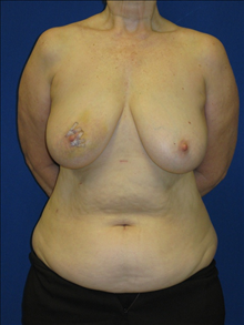 Breast Reconstruction Before Photo by Minas Chrysopoulo, MD; San Antonio, TX - Case 24084
