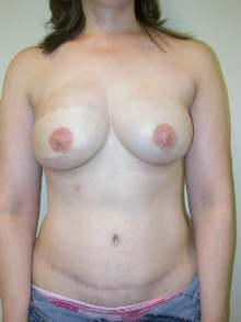 Breast Reconstruction After Photo by Minas Chrysopoulo, MD; San Antonio, TX - Case 24088