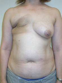 Breast Reconstruction Before Photo by Minas Chrysopoulo, MD, FACS; San Antonio, TX - Case 24088