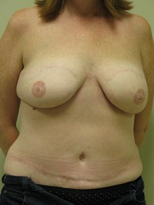 Breast Reconstruction After Photo by Minas Chrysopoulo, MD; San Antonio, TX - Case 24089
