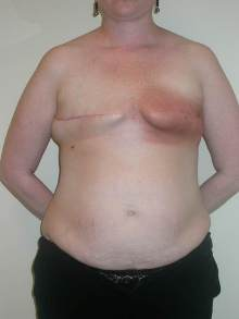 Breast Reconstruction Before Photo by Minas Chrysopoulo, MD, FACS; San Antonio, TX - Case 24089