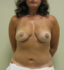 Breast Reconstruction After Photo by Minas Chrysopoulo, MD; San Antonio, TX - Case 24099