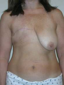 Breast Reconstruction Before Photo by Minas Chrysopoulo, MD; San Antonio, TX - Case 24099