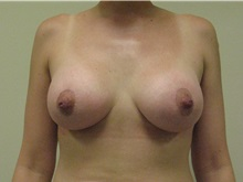 Breast Augmentation After Photo by Minas Chrysopoulo, MD, FACS; San Antonio, TX - Case 29999