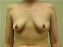 Breast Augmentation Before Photo by Minas Chrysopoulo, MD, FACS; San Antonio, TX - Case 29999