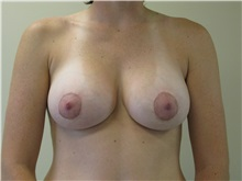Breast Augmentation After Photo by Minas Chrysopoulo, MD, FACS; San Antonio, TX - Case 30000