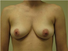Breast Augmentation Before Photo by Minas Chrysopoulo, MD, FACS; San Antonio, TX - Case 30000