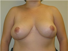Breast Reduction After Photo by Minas Chrysopoulo, MD, FACS; San Antonio, TX - Case 30001